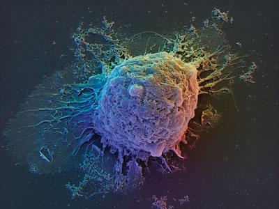 Benefits of Adult Stem Cells